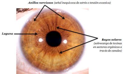 Iridologia ejemplo observacion del iris